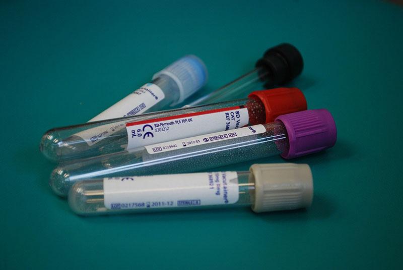 Legionelosis - I+D Control de Plagas